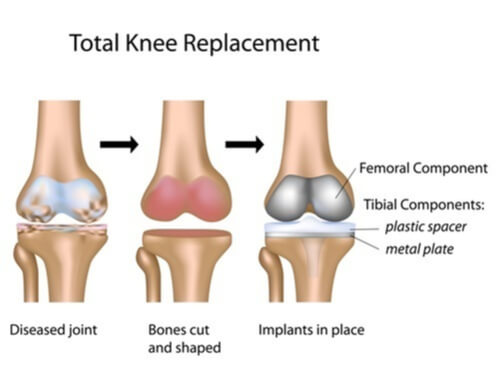 Knee Replacement surgery in Bangalore
