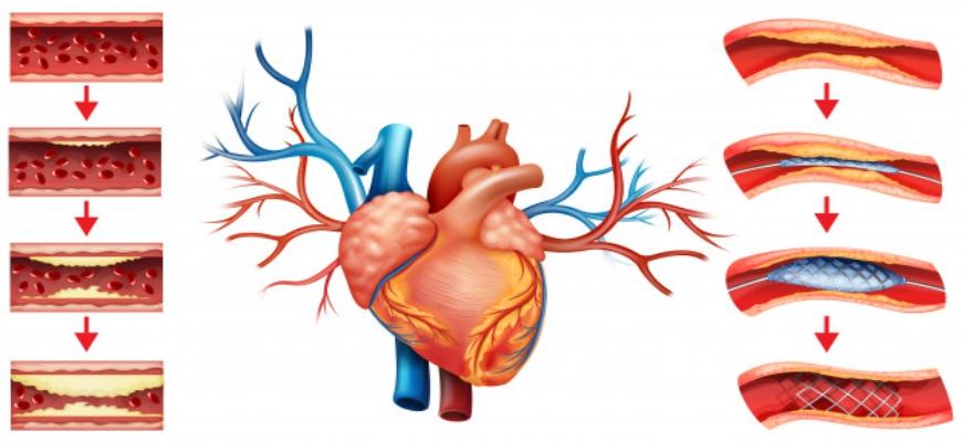 angioplasty (1)